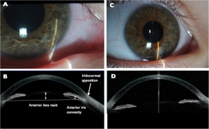Clinical-and-imaging-findings-A-Slit-lamp-exam-of-the-right-eye-demonstrating-diffusely